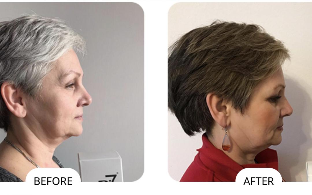 Grey hair FAQ