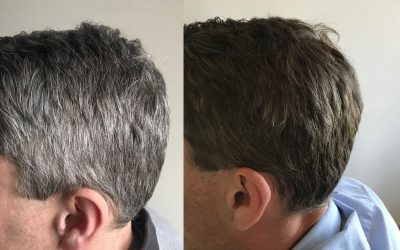 Grey hair at a young age – what to do? GR-7 Professional is the answer!