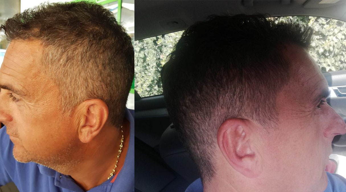 GR-7 anti grey hair product effectiveness shown on before and after photos