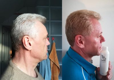 GR-7 anti grey hair product effectiveness shown on before and after photosGR-7 anti grey hair product effectiveness shown on before and after photos